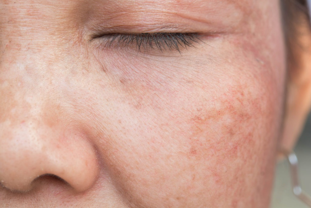 Quick and Easy Ways to Hide Pigmentation and Dark Spots